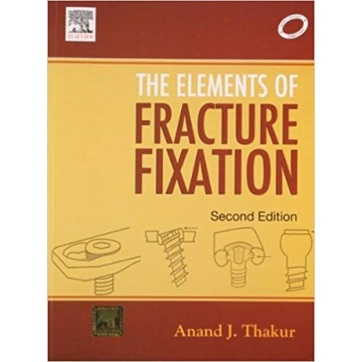 The Elements of Fracture Fixation Paperback by Thakur